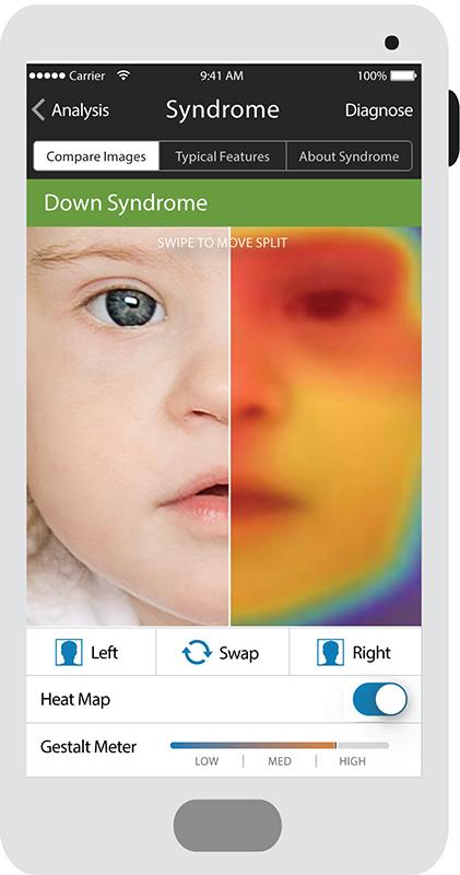 Face2Gene-Composite-Analysis.jpg