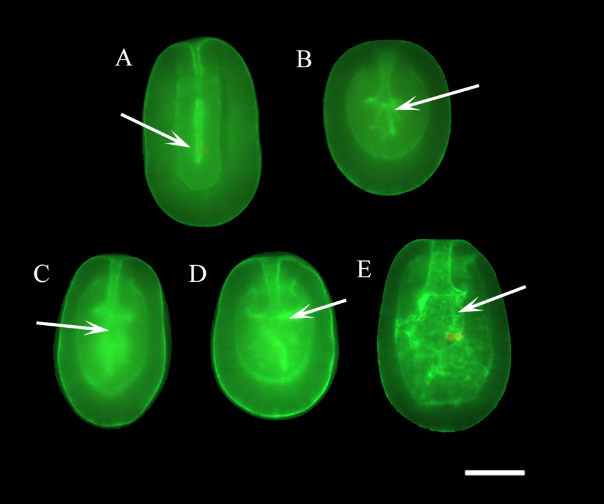 Coral Larvae 2