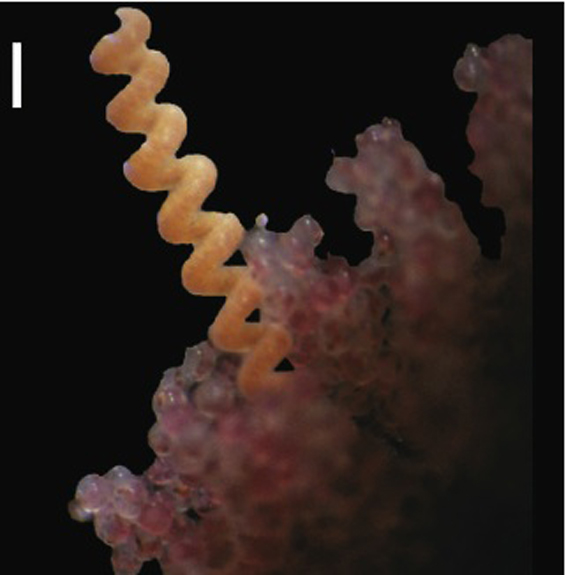 A parasitic ribbon worm, seen in this picture with the crab eggs it persists on.