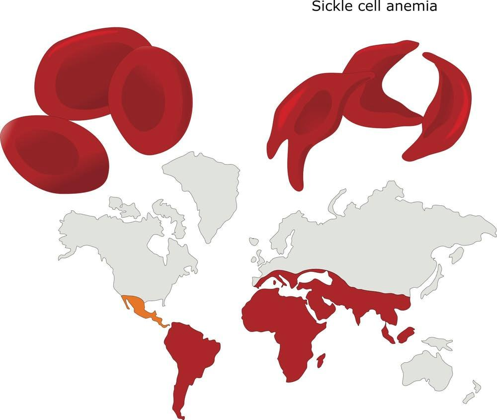 Sickle Cell and Malaria