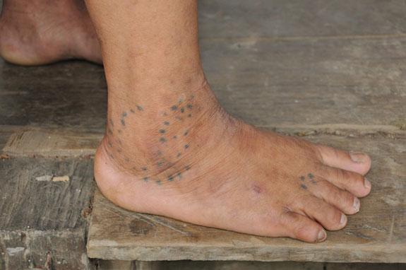 Medicinal joint tattoo of the Kayan