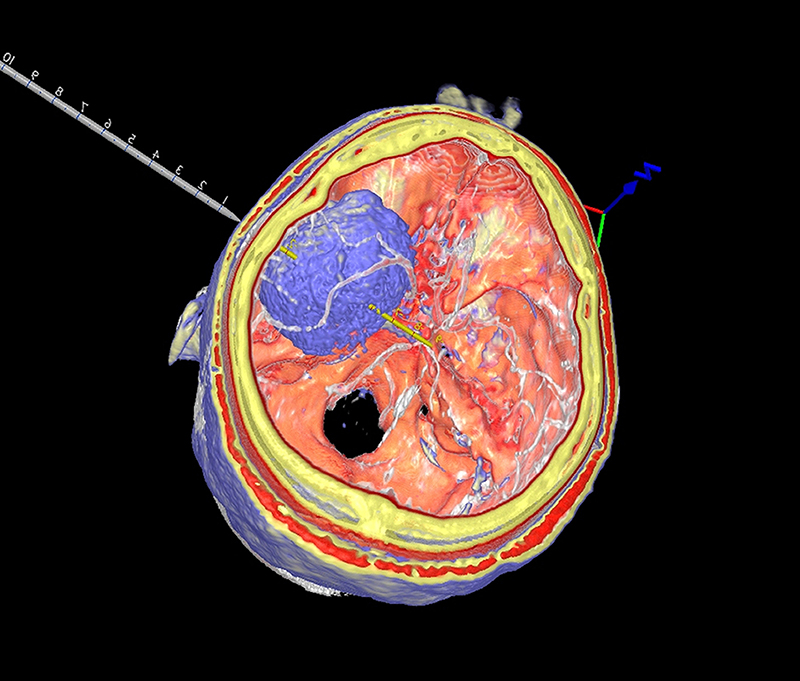 Fusion-of-Tumor-CT-and-MRI.jpg