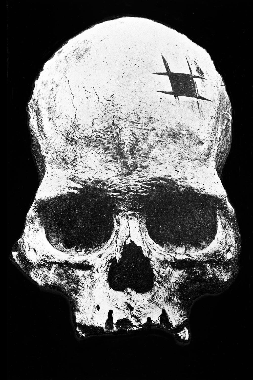 Inca skull showing trepanning