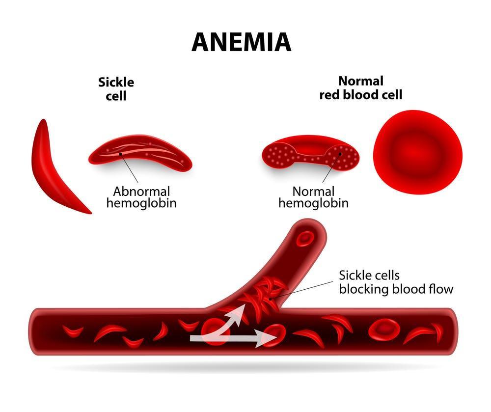 Sickle Cell Gene