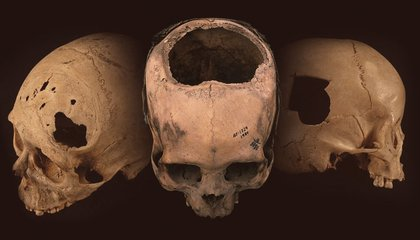 Inca Skull Surgeons Had Better Success Rates Than American Civil War Doctors